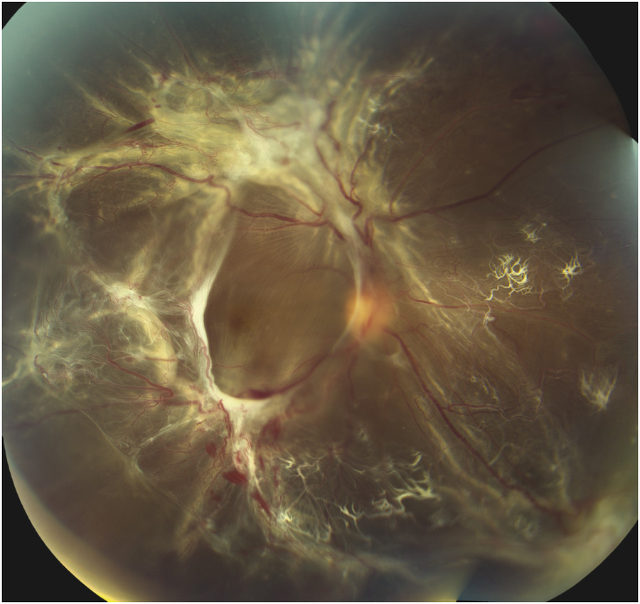 Fundus photograph of severe proliferative diabetic retinopathy with associated fibrovascular proliferation and extensive traction retinal detachment.