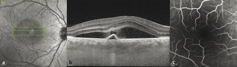 (a,b) Acute central serous chorioretinopathy demonstrating acute focal leakage point emanating from the pigment epithelial detachment peak as a central lucency among the fibrinous subretinal fluid. (c