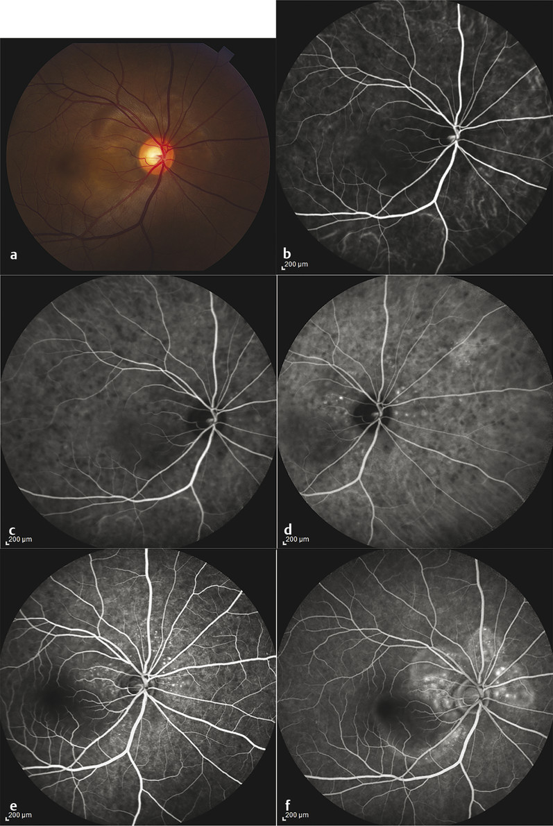 Acute Vogt-Koyanagi-Harada (VKH) angiographic and fundus imaging. (a) Fundus photography. (b–d) Characteristic indocyanine green angiography findings during acute VKH. (e,f) Fluorescein angiography sh