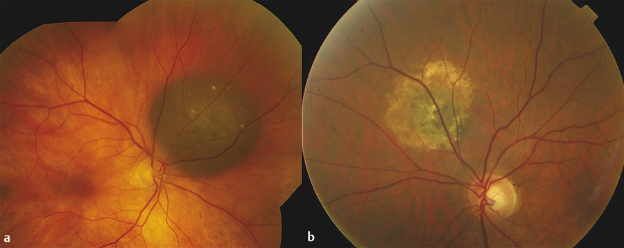 Fundus photographs of choroidal nevi with overlying (a) mild and (b) extensive drusen.