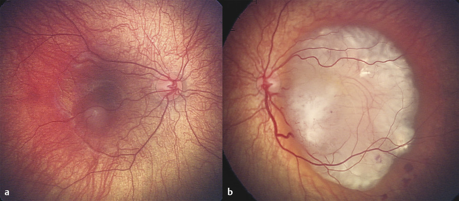 Bilateral retinoblastoma. (a) Fundus photograph demonstrating small macular retinoblastoma. (b) Fundus photography of large macular retinoblastoma with associated epiretinal hemorrhage.
