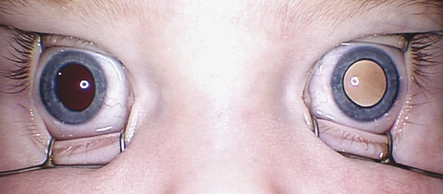 Child with bilateral asymmetrical retinoblastoma with obvious leukocoria in the left eye.