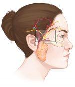 44 Temporal Artery Biopsy