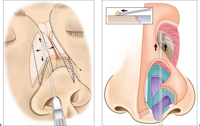 23 Problems Involving The Nasal Vestibule Ento Key