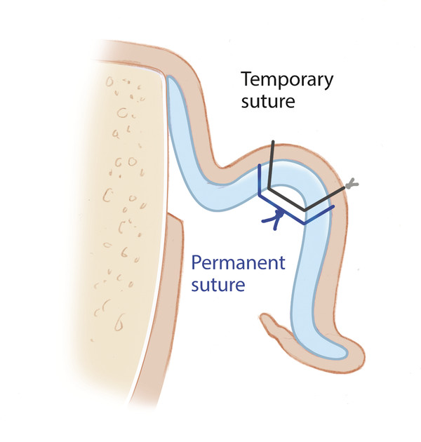 Two permanent mattress sutures are placed through the auricular cartilage and anterior perichondrium, with care taken to avoid violation of the skin, using the method of Furnas. These are then secured