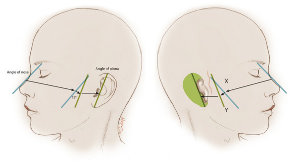 The rotation of the ear. The pinna has a polarity, or an axis of rotation. First, on the nonmicrotia side, the slope of the nose is drawn on the face, and the angle of the pinna is drawn, as determine