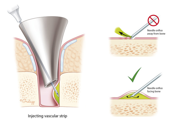 During vascular strip injection, the bevel of the needle must face the bone.