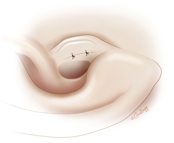 The wound is closed loosely with two absorbable sutures.
