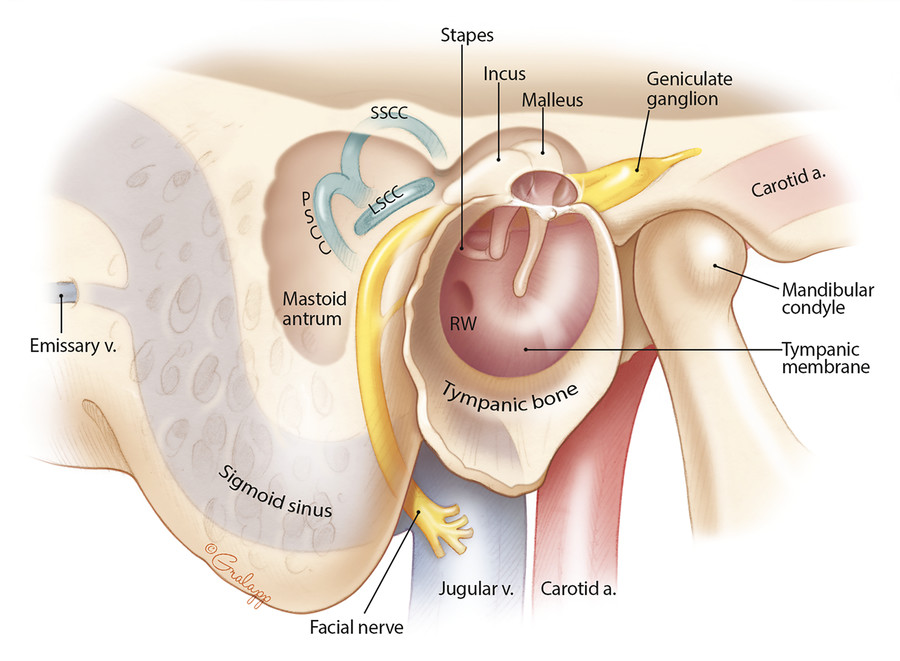 Anatomical relationships of the mastoid antrum and air cells: lateral view. LSCC, lateral semicircular canal; PSCC, posterior semicircular canal; SSCC, superior semicircular canal.