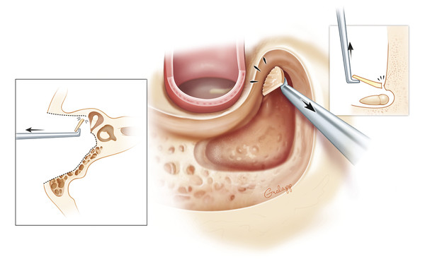 Flaking off the last thin sheet of bone over the incus and malleus with a stapes knife or curette protects the ossicles from contact with the drill which could cause cochlear injury.