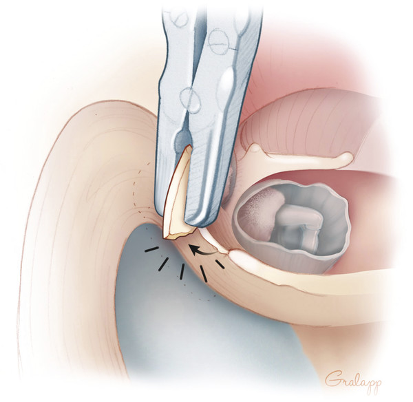 Removing the ear canal wall with a rongeur.