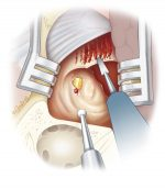 Temporal Bone Resection
