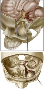 Endoscopic Orbital Surgery: The Neurosurgeon's Perspective