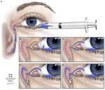 Ophthalmologic Evaluation in Orbital and Lacrimal Disease