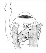 8 The Inferior Oblique—Strabismus Diagnosis and Surgical Planning: Surgical Anatomy, Surgical Principles, and Wound Healing