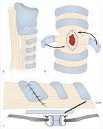 53 Slide Tracheoplasty