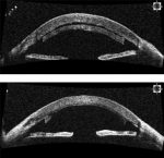 Spontaneous Reattachment of Descemet Stripping Automated Endothelial Keratoplasty Lenticles: A Case Series of 12 Patients