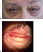 1 Ocular Trauma