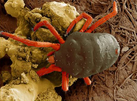 Red-Legged Earth Mite. Photo by the USDA ARS, Electron & Confocal Microscopy Unit, Beltsville, MD by Dr. Gary Bauchan.