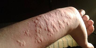 Lonomia electra skin irritation