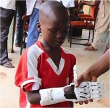 Kid with new hand