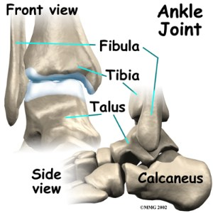 Ankle Replacement | eOrthopod