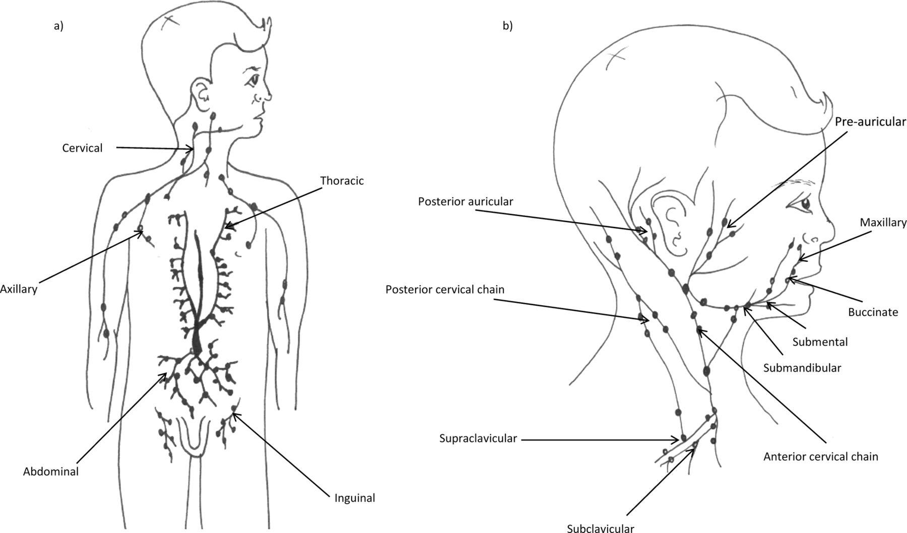 Lymphadenopathy In Children Refer Or Reassure