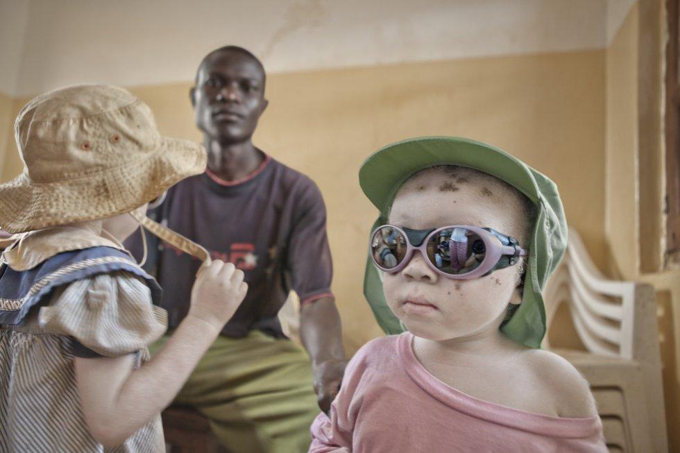 Albinos en Tanzania. Grupo de Dermatología Pedro Jaén
