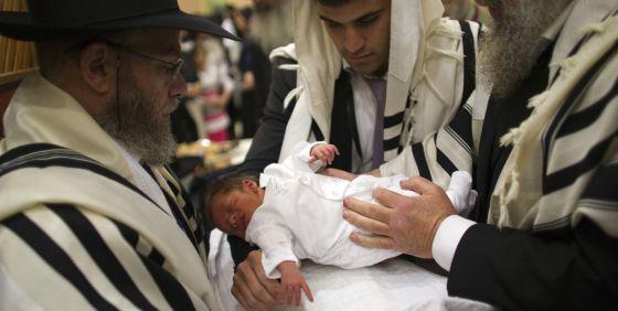 Se Como Hace La Circuncision
