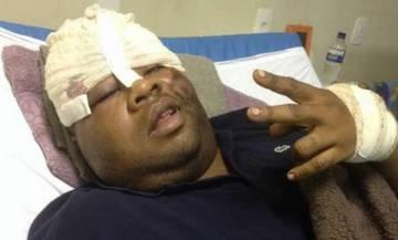 O traficante Fat Family antes de ser resgatado enquanto se recuperava de um disparo no rosto.