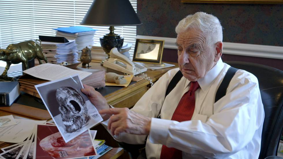 Werner Spitz, patálogo forense del caso, mostrando la imagen del cráneo de la monja Catherine, con el boquete que produjo el impacto.