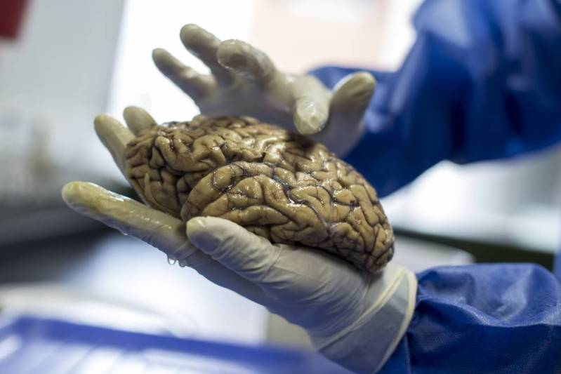 El investigador David Aguillón muestra los cerebros que tienen en el neurobanco del Grupo de Neurociencias de la Universidad de Antioquia.