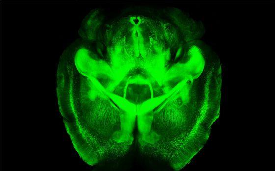 Imagen de un cerebro de ratón tratado con la técnica CLARITY.