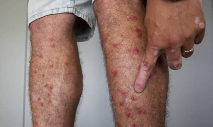 La mosca negra, la plaga que acecha en los ríos españoles ...