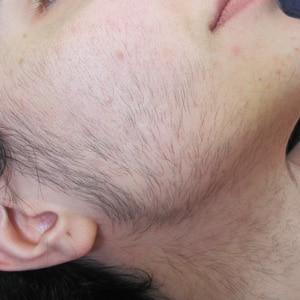 Epilation Gesicht schwarze Haare