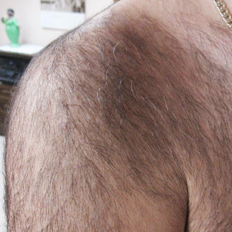 Epilation Schulter - Beginn
