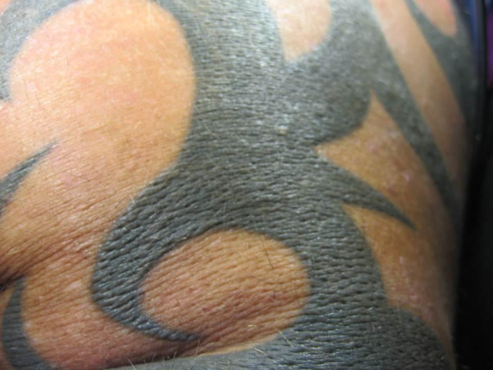 Ergebniss Epilation mit Tattoo