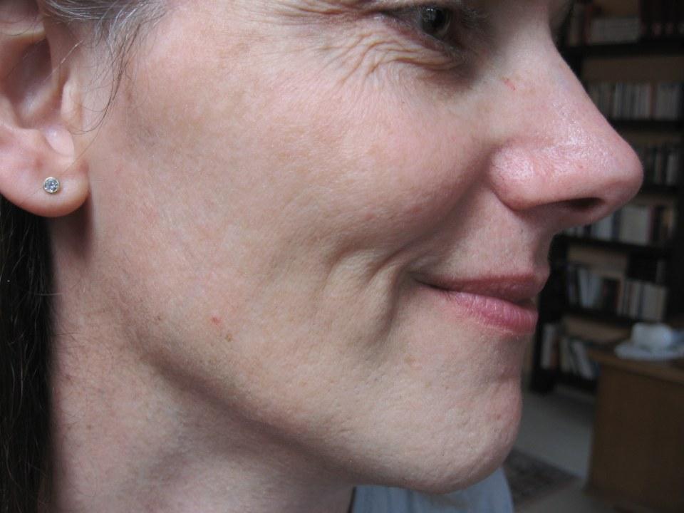 Haarentfernung Gesicht