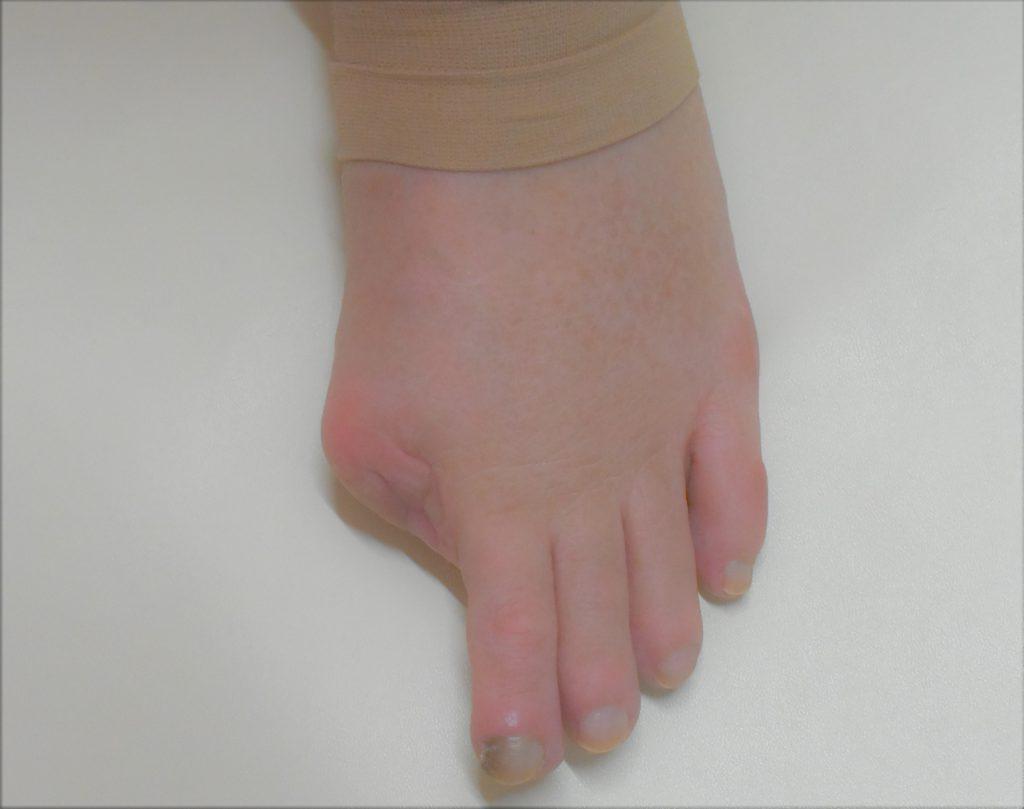 左足親指のメラノーマにより指先切断しエピテみやびに相談しにこられたお客様