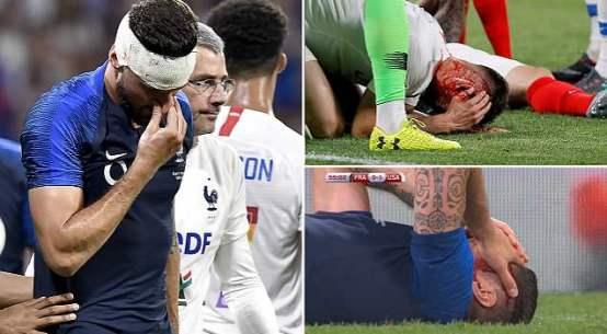 Giroud Injury vs USA