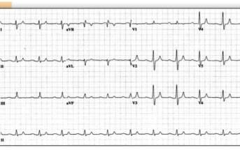 ECG  PEARLS: Beware the Slow Mimics  of Ventricular Tachycardia