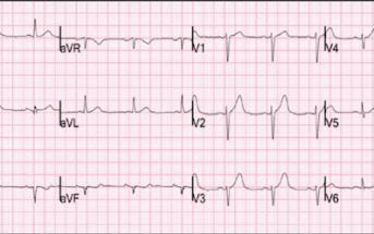 Subtle LAD Occlusion On ECG