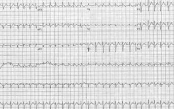 Massive Pulmonary Embolism & Dysrhythmia