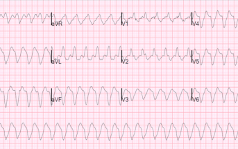ECG Quiz: Very Wide and Very Fast