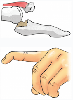 FingerTipsC