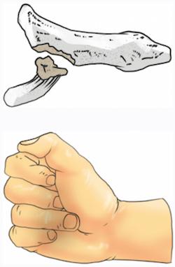 FingerTipsD