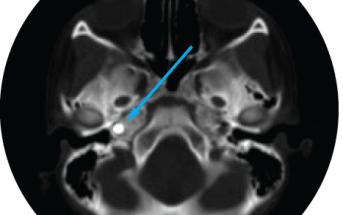 Case Study: Penetrating Cardiac Injury from BB Gun