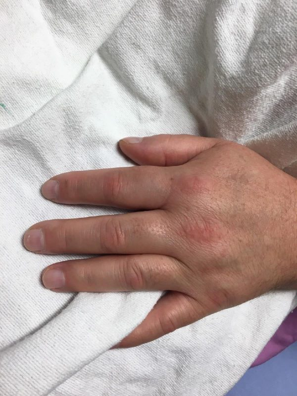 Handswelling from lymphoma