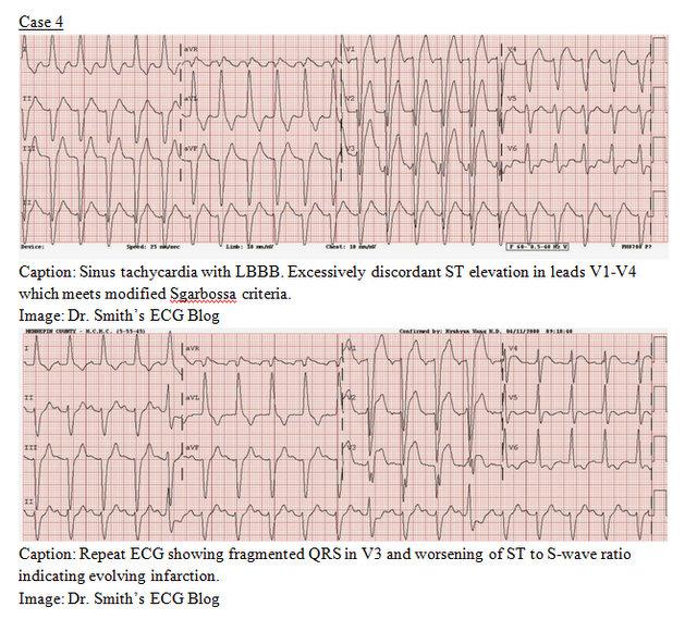 EP Monthly EKG case 4