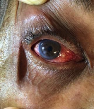 eye exam Fig1a